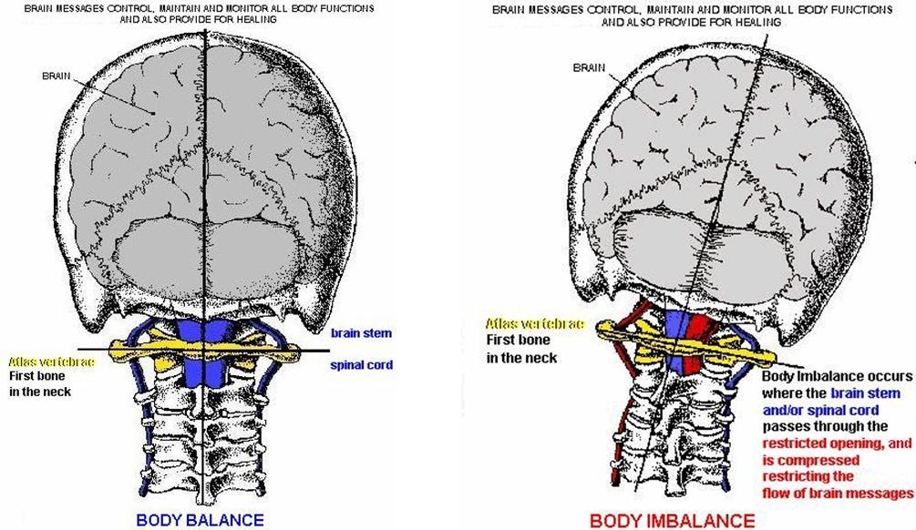 Значение на правилното положение на главата